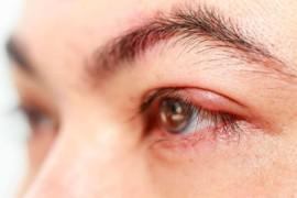 Почему возникает ячмень на глазу и как его лечить