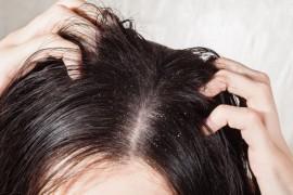 Причины появления перхоти и способы ее лечения