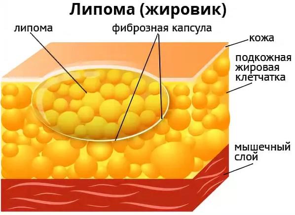 Как выглядит липома