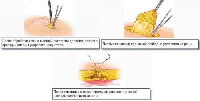 Операция по удалению липомы