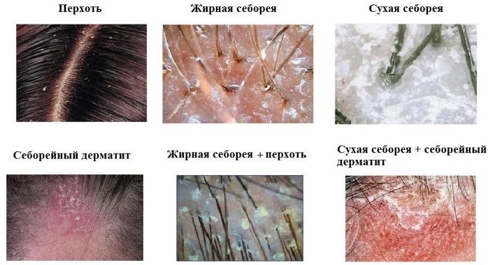 Разновидности шелушений
